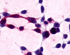 Immunohistochemistry (Formalin/PFA-fixed paraffin-embedded sections) - Anti-XPR1 antibody (ab13291)