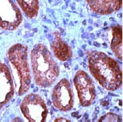 Immunohistochemistry (Formalin-fixed paraffin-embedded sections) - Wnt1 antibody (ab15251)