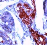 Immunohistochemistry (Formalin/PFA-fixed paraffin-embedded sections) - Anti-NSE antibody (ab15486)