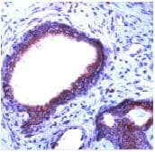 Immunohistochemistry (Formalin/PFA-fixed paraffin-embedded sections) - Anti-PDGF Receptor beta antibody, prediluted (ab15502)