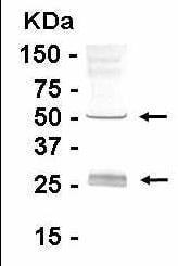 Western blot - Human IgA antibody (ab15864)