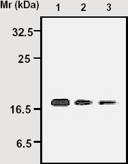 - Peroxiredoxin 5 antibody [3F11] (ab16944)