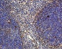 Immunohistochemistry (Formalin/PFA-fixed paraffin-embedded sections) - Anti-IL22 antibody (ab18564)
