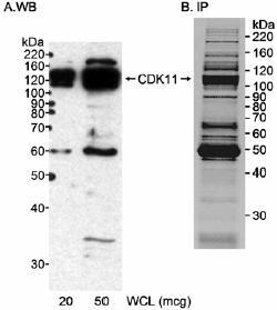 Western blot - Anti-CDK11 / CDC2L2 antibody (ab19393)