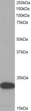 Western blot - Anti-TMS1 antibody (ab2236)