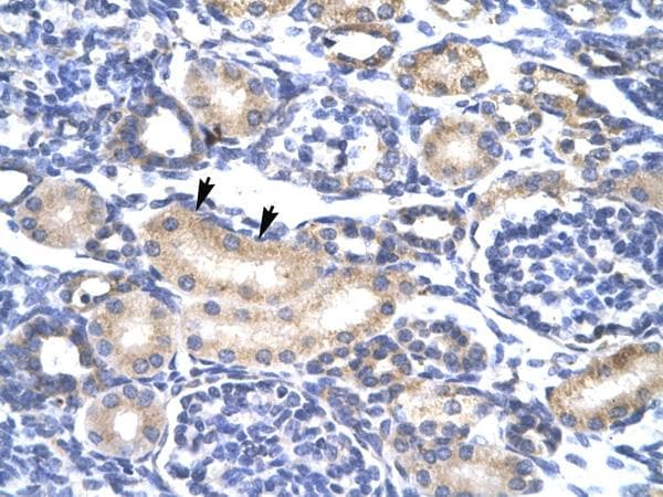 Immunohistochemistry (Paraffin-embedded sections) - SOX30 antibody (ab26024)