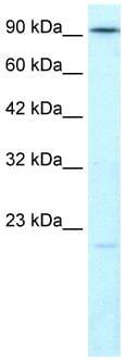 Western blot - DNA Ligase IV antibody (ab26039)