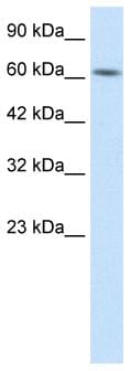 Western blot - BTB domain containing 5 antibody (ab26112)