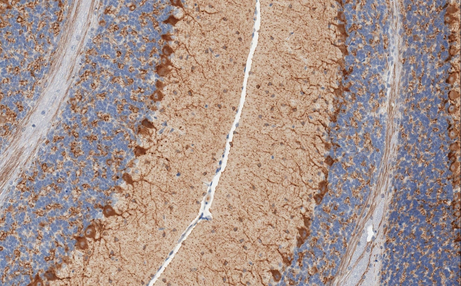 Immunohistochemistry (Formalin/PFA-fixed paraffin-embedded sections) - GAD67 antibody [K-87] - Neuronal Marker (ab26116)