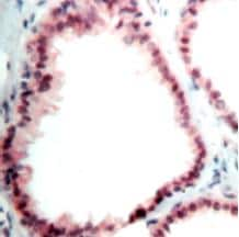 Immunohistochemistry (Formalin-fixed paraffin-embedded sections) - NRG1 antibody, prediluted (ab27085)