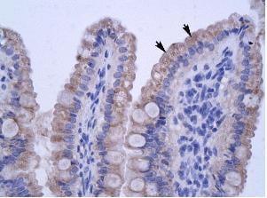 Immunohistochemistry (Paraffin-embedded sections) - ZNF358 antibody (ab28678)