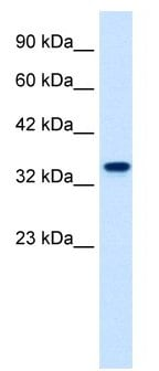 Western blot - ZNF2 antibody (ab28682)