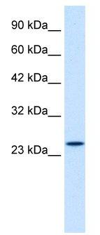 Western blot - ZNF22 antibody (ab28683)