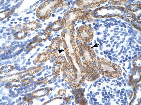 Immunohistochemistry (Paraffin-embedded sections) - KCNA10 antibody (ab28724)