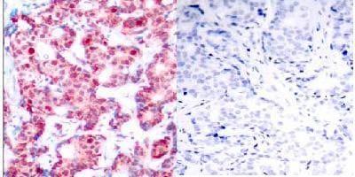 Immunohistochemistry (Paraffin-embedded sections) - GATA1 (phospho S142) antibody (ab28816)