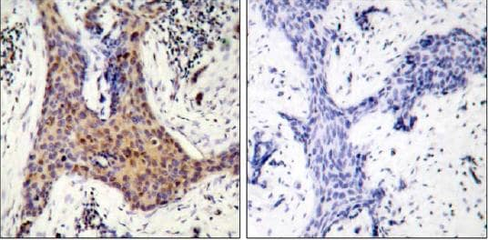 Immunohistochemistry (Paraffin-embedded sections) - Bad (phospho S136) antibody (ab28824)