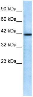 Western blot - CHRFAM7A antibody (ab28885)