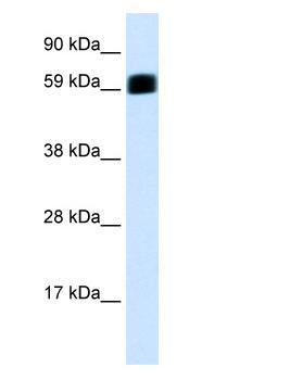Western blot - PKR antibody (ab28943)