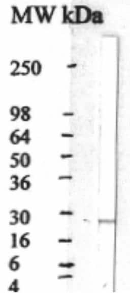Western blot - CNTF antibody (ab28951)