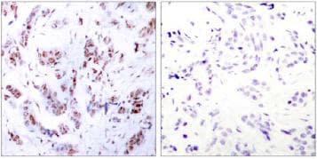 Immunohistochemistry (Paraffin-embedded sections) - MEF2A (phospho T312) antibody (ab30668)