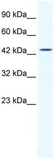 Western blot - DMRTB1 antibody (ab30911)