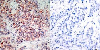 Immunohistochemistry (Formalin/PFA-fixed paraffin-embedded sections) - Anti-PTEN antibody (ab31392)