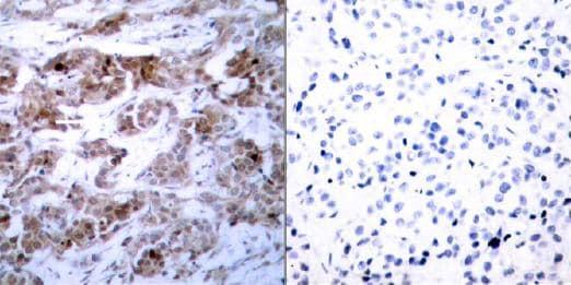 Immunohistochemistry (Formalin/PFA-fixed paraffin-embedded sections) - Anti-Bcl-2 antibody (ab31394)