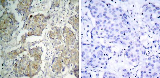 Immunohistochemistry (Paraffin-embedded sections) - VEGF Receptor 2 (phospho Y1214) antibody (ab31480)