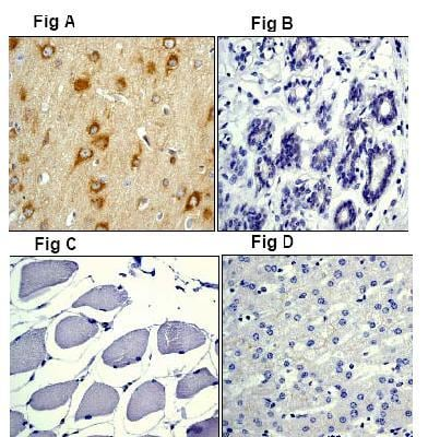 Immunohistochemistry (Paraffin-embedded sections) - Amyloid beta precursor protein antibody [Y188] (ab32136)