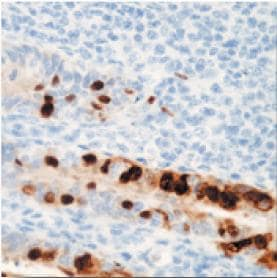 Immunohistochemistry (Formalin/PFA-fixed paraffin-embedded sections) - Adenovirus E1A antibody [0.N.7] (ab33183)
