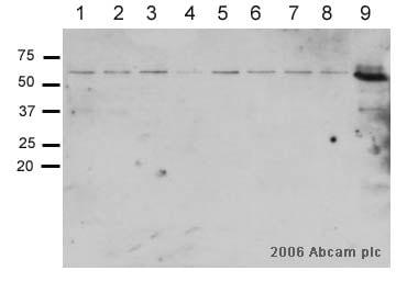 Western blot - Anti-Smad2 antibody [EP567Y] (ab33875)