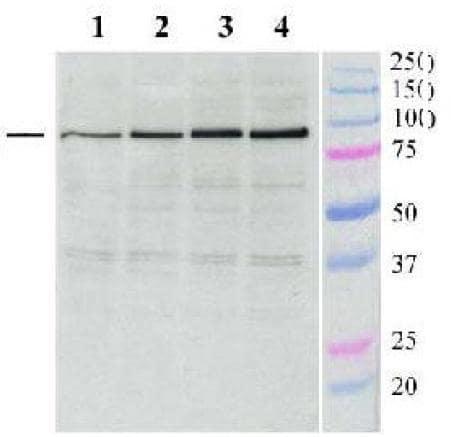 Western blot - ABCG1 antibody (ab36969)