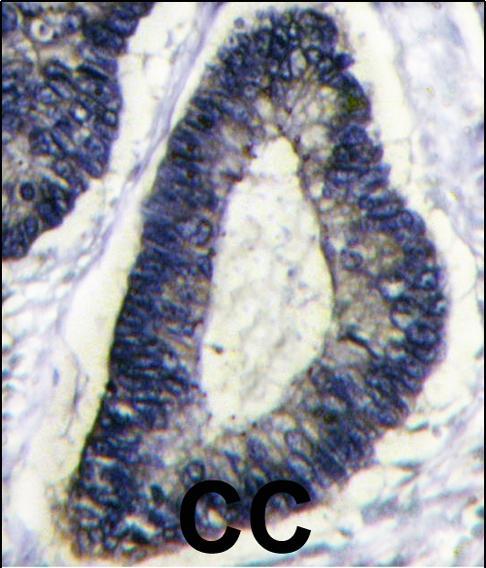 Immunohistochemistry (Paraffin-embedded sections) - BNIP3 antibody (ab38621)