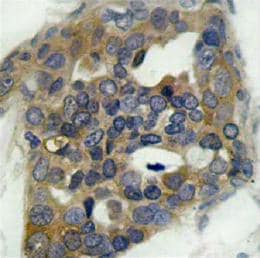 Immunohistochemistry (Paraffin-embedded sections) - ASK1 (phospho S996) antibody (ab39402)