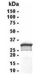 SDS-PAGE - TSG6 protein (ab40618)