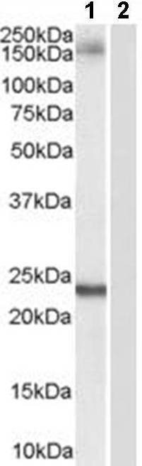 Western blot - GOLGA3 antibody (ab45813)