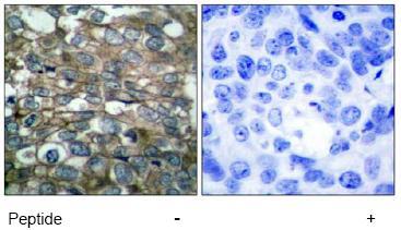 Immunohistochemistry (Paraffin-embedded sections) - EGFR antibody (ab47439)