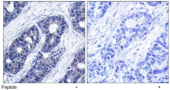 Immunohistochemistry (Paraffin-embedded sections) - IRS1 antibody (ab47440)