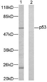 Western blot - p53 antibody (ab47442)
