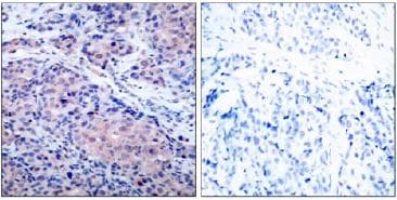 Immunohistochemistry (Paraffin-embedded sections) - IKB alpha antibody (ab47449)