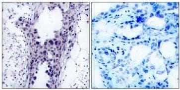 Immunohistochemistry (Paraffin-embedded sections) - PTEN antibody (ab47451)