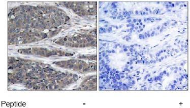 Anti-NFkB p105 / p50 antibody (ab47475)