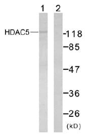 Western blot - HDAC5 antibody (ab47519)