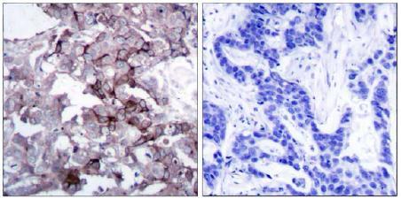 Immunohistochemistry (Paraffin-embedded sections) - EGFR antibody (ab47558)