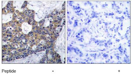 Immunohistochemistry (Paraffin-embedded sections) - IRS1 antibody (ab47559)