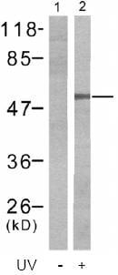 Western blot - Chk1 (phospho S280) antibody (ab47560)