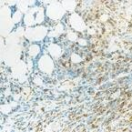 Immunohistochemistry (Paraffin-embedded sections) - CD39 antibody [22A9] (ab49580)