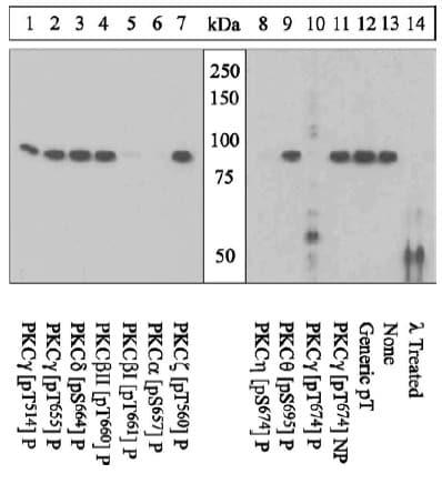 Western blot - Anti-PKC gamma (phospho T674) antibody (ab5797)