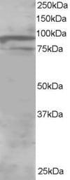 Western blot - Anti-OSBPL11 antibody (ab5934)