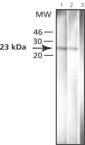 Western blot - SNAP23 antibody (ab50357)